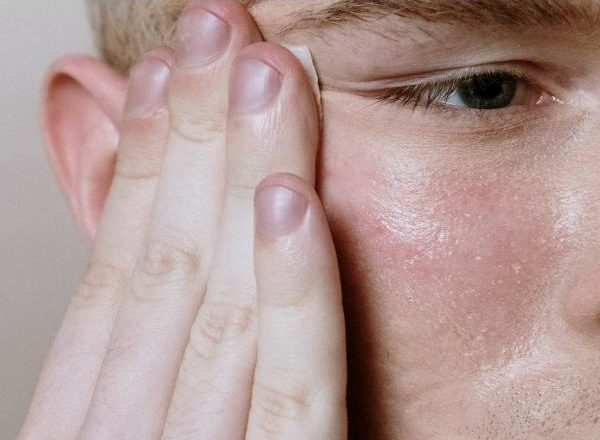 Acne: Easy Ways to Avoid Getting an Infected Acne